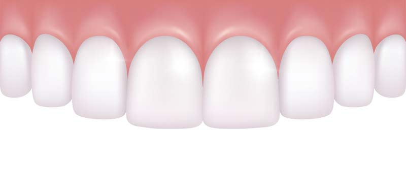 illustration of gum recontouring at ZenTech Dentistry in West Linn, OR